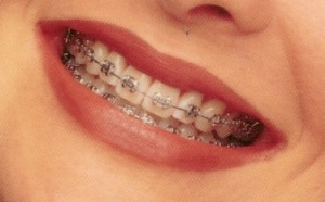 Affordable orthodontics Melbourne