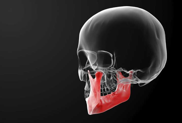 best orthodontic jaw surgery melbourne