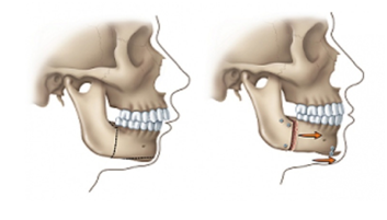 orthognathic jaw surgery melbourne